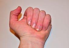 Samiec przybija chorobę i no robi gwoździowi, paznokcia odżywki brak no kształtować i no dbać zdjęcia royalty free