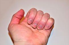 Samiec przybija chorobę i no robi gwoździowi, paznokcia odżywki brak no kształtować i no dbać, zdjęcie royalty free