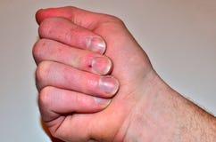 Samiec przybija chorobę i no robi gwoździowi, paznokcia odżywki brak no kształtować i no dbać obraz stock