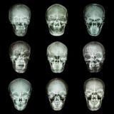 Samling av asiats skalle Fotografering för Bildbyråer