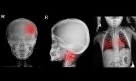 Samling av barnröntgenstrålar Arkivbild