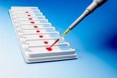 Mikroskopiskt blod tar prov Royaltyfri Fotografi