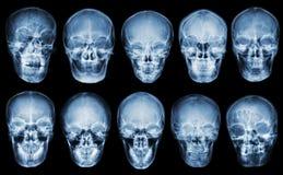 Samling av den asiatiska skallen Bekläda beskådar Isolerad bakgrund Royaltyfria Bilder