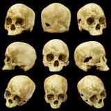 Samling av den mänskliga skallen Royaltyfri Foto