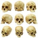 Samling av (den mongoloida) mänskliga skallen och den brutna skallen Arkivfoton