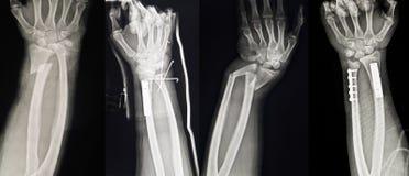 Samlingen av människaröntgenstrålar som visar den åtskilliga handen, bryter arkivbild