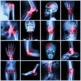 Samlingsmänniskaskarv och artrit och slaglängd arkivbild