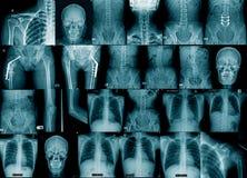 Samlingsröntgenstrålebild royaltyfria bilder