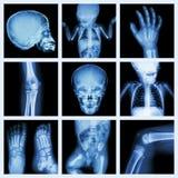 Samlingsröntgenstråledel av barnkroppen (version 2) Arkivfoto