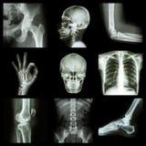 Samlingsröntgenstråledel av människan Arkivbild