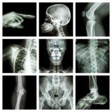 Samlingsröntgenstråledel av människan (version 2) Royaltyfri Bild