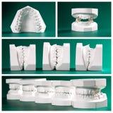 Sammanställningbild av tand- studiemodeller Arkivbilder