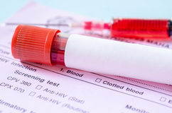 Sample blood collection tube with blank label. On HIV infection screening test form stock photography