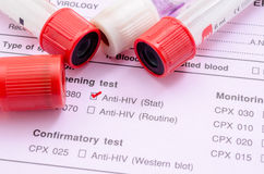 Sample blood collection tube. Sample blood collection tube with HIV test label on HIV infection screening test form stock photos