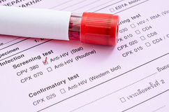 Sample blood collection tube. Sample blood collection tube with HIV test label on HIV infection screening test form royalty free stock images