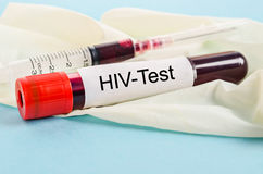 Sample blood for screening test for HIV test. stock photos
