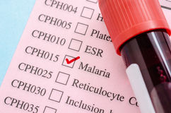 Sample blood tube on Malaria test form paper. Royalty Free Stock Photography