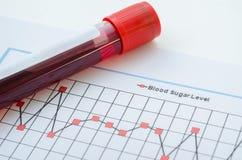 Sang d'échantillon pour examiner l'essai diabétique photo libre de droits