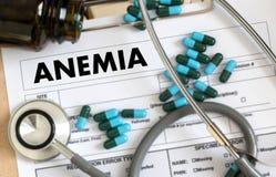Sang d'ANÉMIE pour l'essai, concept médical, deficie de fer de diagnostic images stock