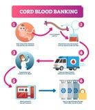 Sang de cordon ombilical encaissant l'illustration infographic de vecteur Diagramme d'explication illustration de vecteur