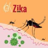 Sang de succion de manifestation et de moustique de virus de Zika sur la peau Photo stock