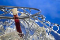 Sang prenant pour examiner sur la glace photo stock