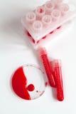 Sangue nos tubos plásticos, prato de petri ninguém vista superior imagem de stock