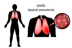 SARS. inflamed lungs and the causative agent Stock Image