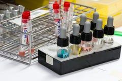 sats för blodtypprov Arkivbilder