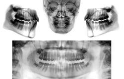 Satz des panoramischen zahnmedizinischen Röntgenstrahls lizenzfreie stockbilder