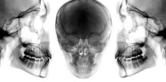 Satz des Röntgenstrahlschädels stockbild
