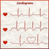 Satz Kardiogramme Lizenzfreie Stockfotos