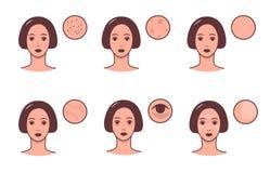 Satz weibliche Gesichter mit verschiedenen Hautzuständen und -problem Skincare und Dermatologiekonzept Vektor bunt lizenzfreie abbildung