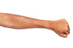 Sbucciatura della pelle dopo bruciato da luce solare Immagini Stock
