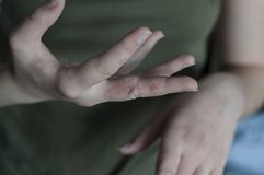 Scabies dans le macro Blessure dans des mains photo stock