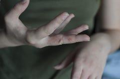 Scabies in macro. Sore in hands. Pain in hands. Sore at woman hand. Scabies in macro, itchy fingers stock photo
