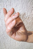 Scald on Fingers Stock Image