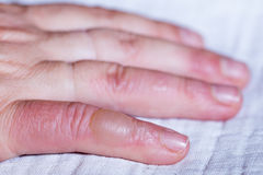 Scalded hand. Blister on your finger. Closeup Stock Image