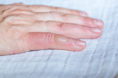 Scalded hand. Blister on your finger. Royalty Free Stock Images