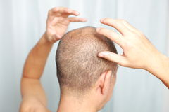 Scalp massage Stock Photos