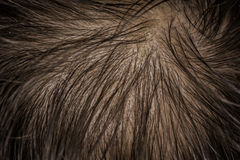 Scalp skin with hair fall Royalty Free Stock Photo