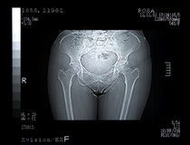 Scan of a Broken Pelvis Stock Image