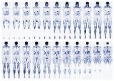 Scannen Sie den menschlichen Körper Stockbild