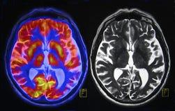 Scansione del cervello Fotografie Stock Libere da Diritti