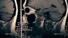 Scansione del cervello o imaging a raggi X di RMI video d archivio