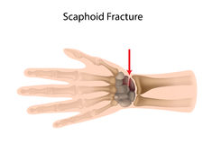 Scaphoid wrist fracture Stock Photos