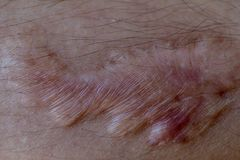 A scar is an area of fibrous tissue that replaces normal skin after an injury. A scar is an area of fibrous tissue that replaces normal skin after an injury on royalty free stock photos