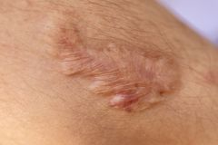 A scar is an area of fibrous tissue that replaces normal skin after an injury. A scar is an area of fibrous tissue that replaces normal skin after an injury on royalty free stock images