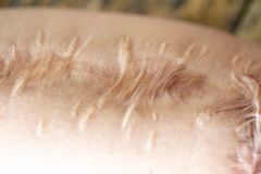 A scar is an area of fibrous tissue that replaces normal skin. A scar is an area of fibrous tissue that replaces normal skin after an injury on skin arm stock photo