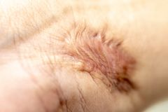 A scar is an area of fibrous tissue that replaces normal skin after an injury. A scar is an area of fibrous tissue that replaces normal skin after an injury on stock image